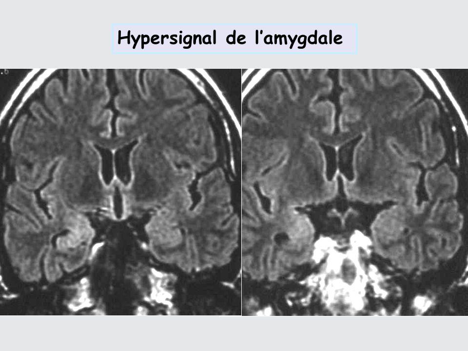 Hypersignal de lamygdale