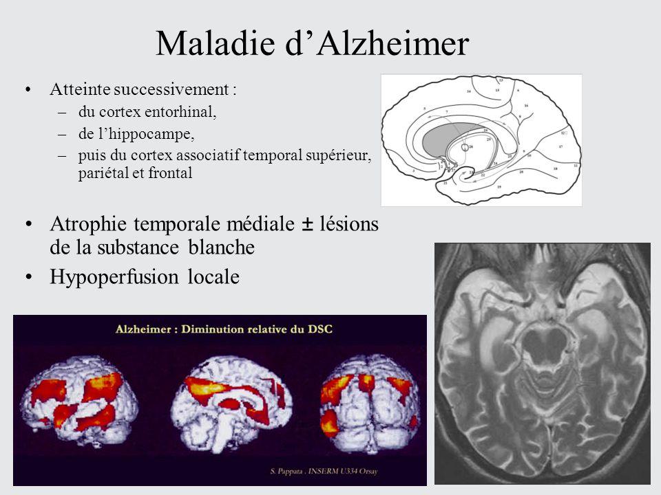 Maladie dAlzheimer Atteinte successivement : –du cortex entorhinal, –de lhippocampe, –puis du cortex associatif temporal supérieur, pariétal et fronta