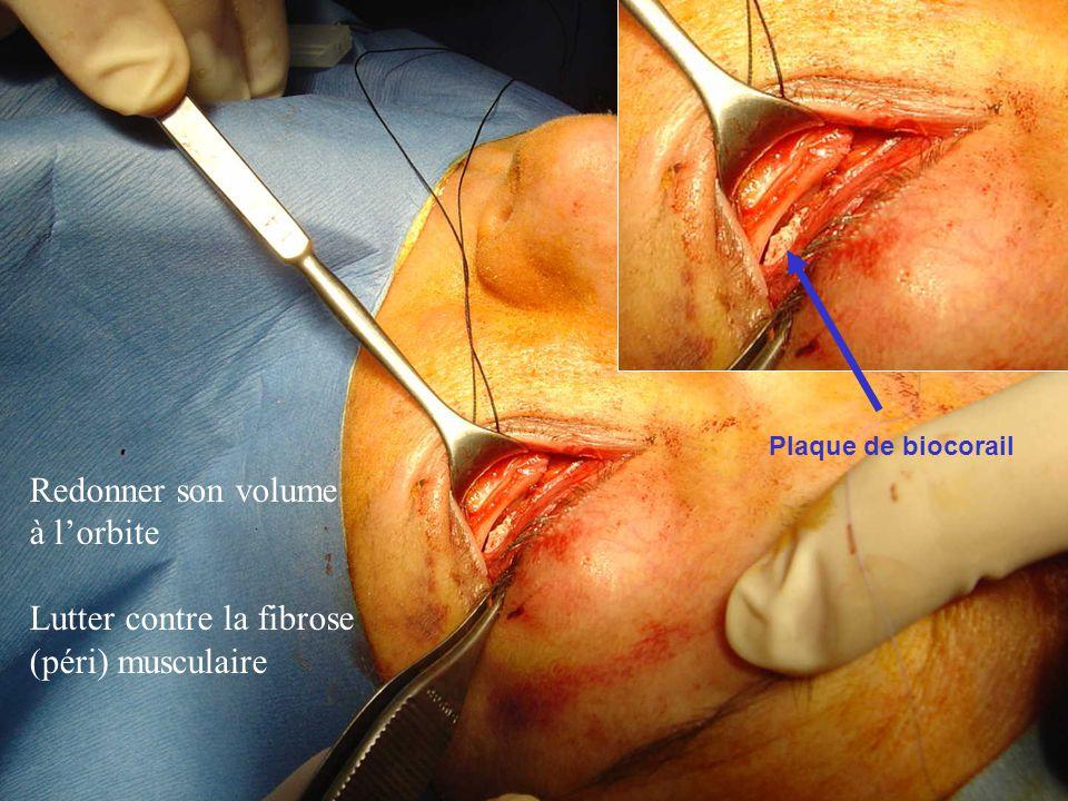 Plaque de biocorail Redonner son volume à lorbite Lutter contre la fibrose (péri) musculaire