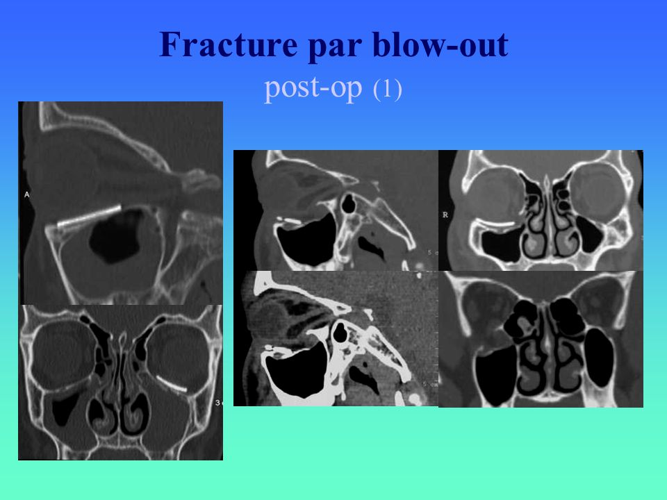 Fracture par blow-out post-op (1)