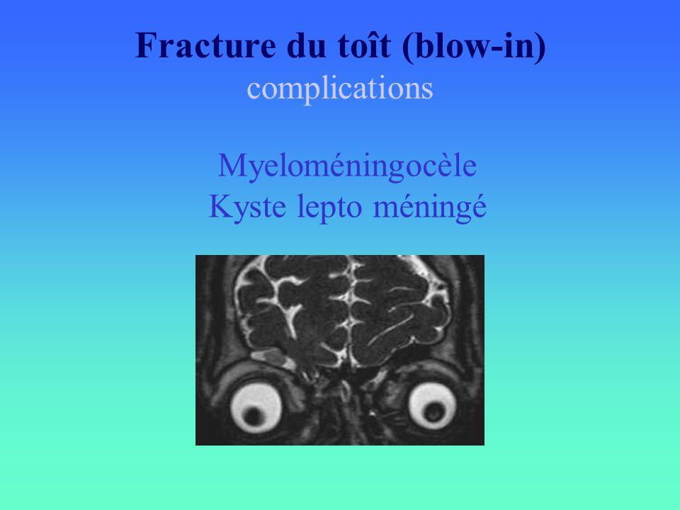 Fracture du toît (blow-in) complications Myeloméningocèle Kyste lepto méningé