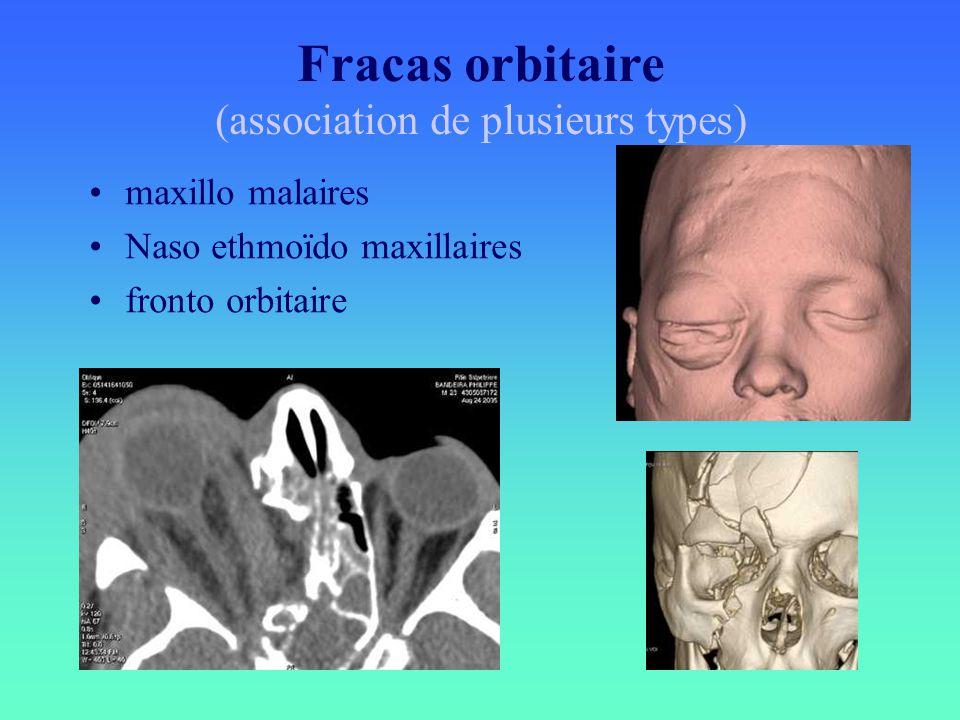 Fracas orbitaire (association de plusieurs types) maxillo malaires Naso ethmoïdo maxillaires fronto orbitaire