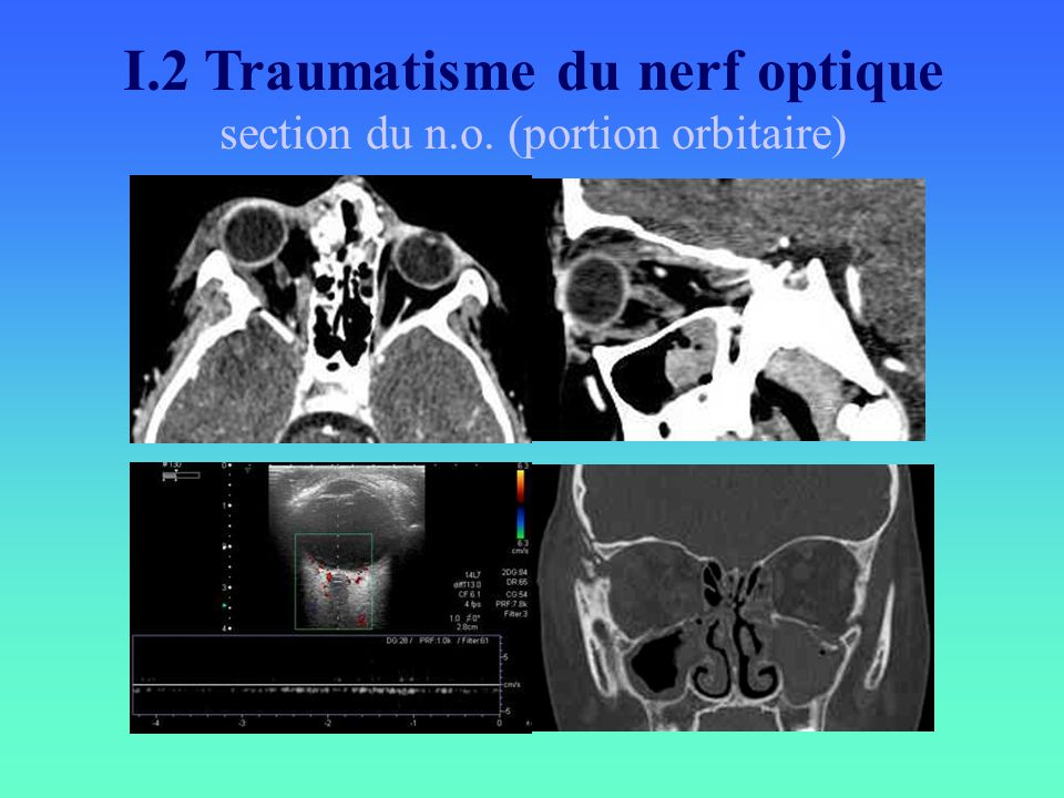 I.2 Traumatisme du nerf optique section du n.o. (portion orbitaire)