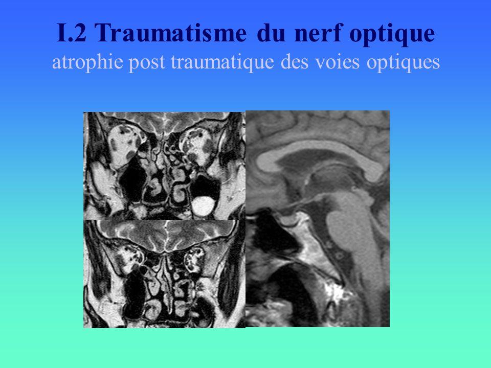 I.2 Traumatisme du nerf optique atrophie post traumatique des voies optiques