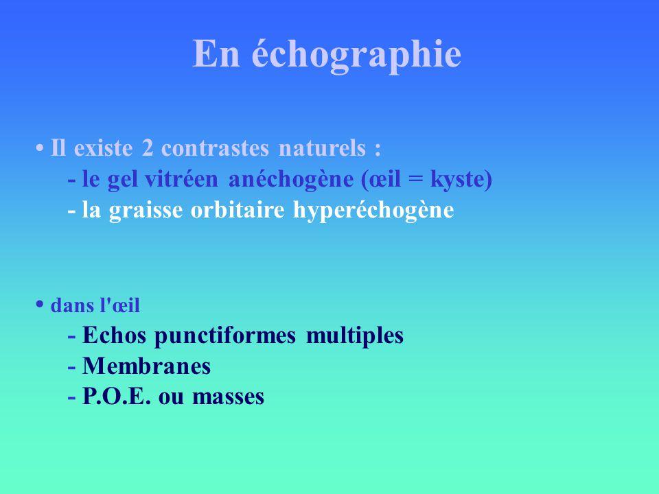 En échographie Il existe 2 contrastes naturels : - le gel vitréen anéchogène (œil = kyste) - la graisse orbitaire hyperéchogène dans l'œil - Echos pun