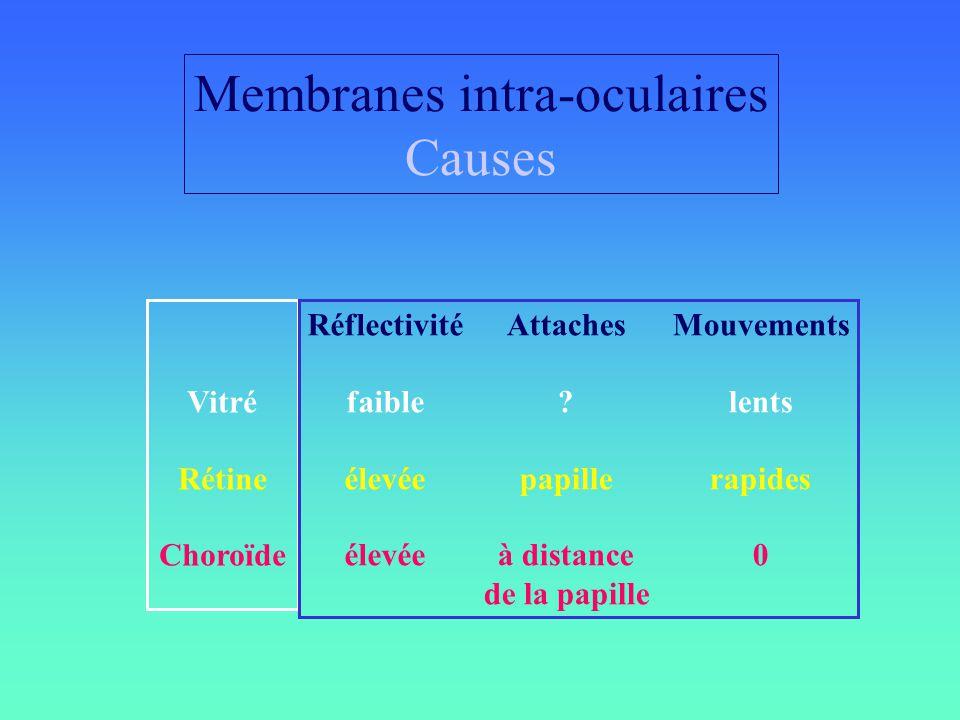Membranes intra-oculaires Causes Réflectivité faible élevée Attaches ? papille à distance de la papille Mouvements lents rapides 0 Vitré Rétine Choroï