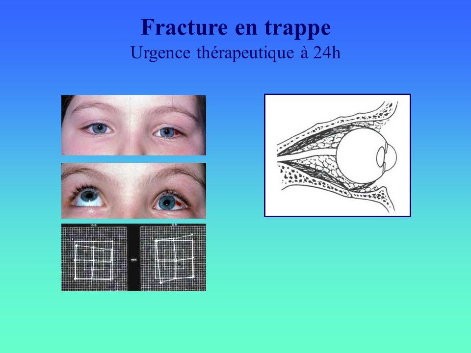 Fracture en trappe Urgence thérapeutique à 24h