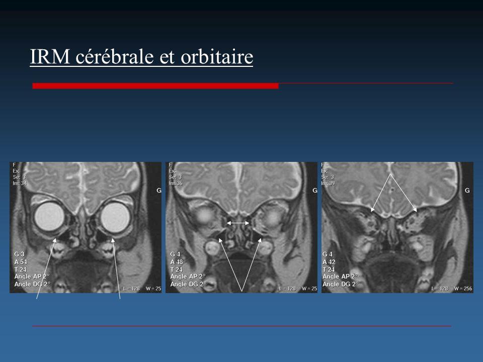 IRM cérébrale et orbitaire