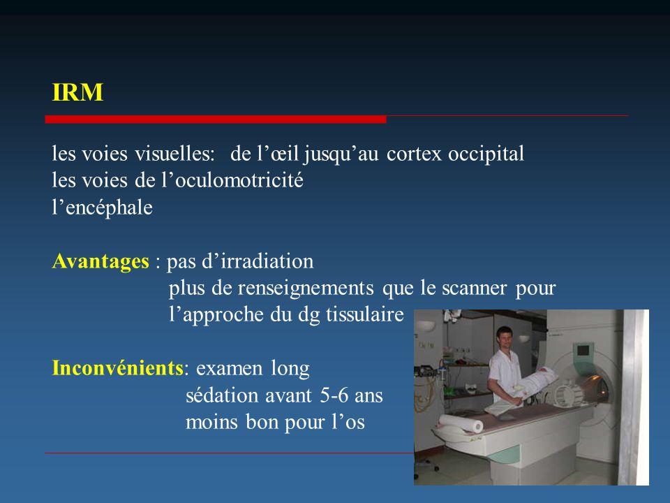 les voies visuelles: de lœil jusquau cortex occipital les voies de loculomotricité lencéphale Avantages : pas dirradiation plus de renseignements que