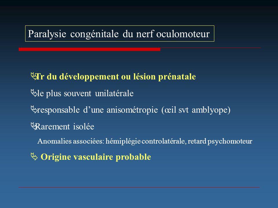 Paralysie congénitale du nerf oculomoteur Tr du développement ou lésion prénatale le plus souvent unilatérale responsable dune anisométropie (œil svt