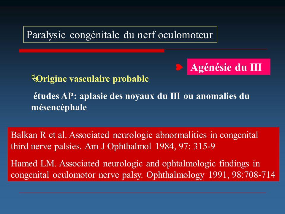 Paralysie congénitale du nerf oculomoteur Origine vasculaire probable études AP: aplasie des noyaux du III ou anomalies du mésencéphale Balkan R et al