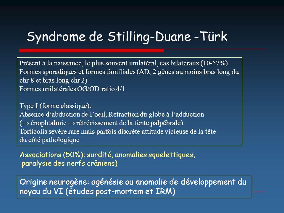 Syndrome de Stilling-Duane -Türk Présent à la naissance, le plus souvent unilatéral, cas bilatéraux (10-57%) Formes sporadiques et formes familiales (