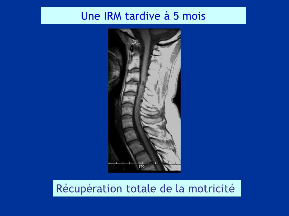 Une IRM tardive à 5 mois Récupération totale de la motricité