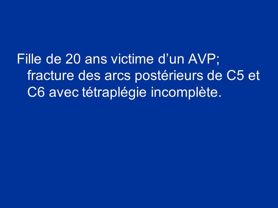 Fille de 20 ans victime dun AVP; fracture des arcs postérieurs de C5 et C6 avec tétraplégie incomplète.