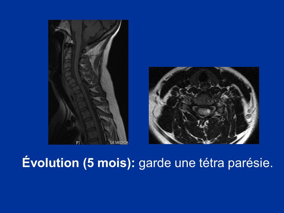 Évolution (5 mois): garde une tétra parésie.