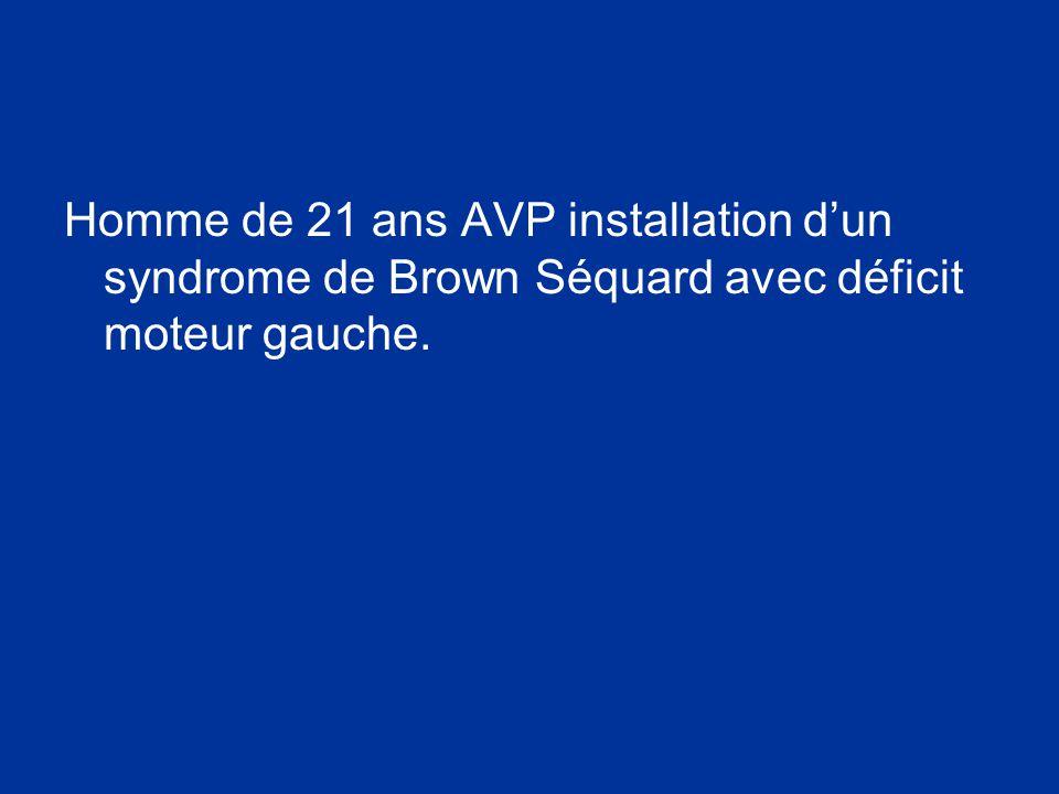 Homme de 21 ans AVP installation dun syndrome de Brown Séquard avec déficit moteur gauche.