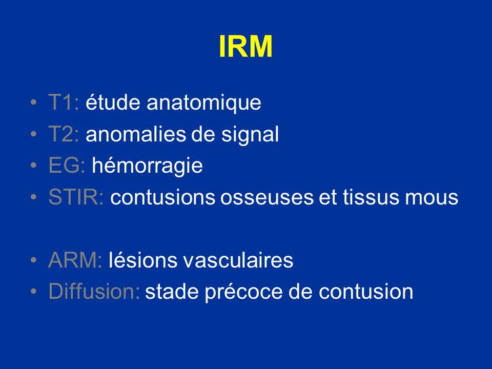 IRM Sagittales: extension en hauteur section de moelle Axiales: site exact rapports avec les structures anatomiques avoisinantes