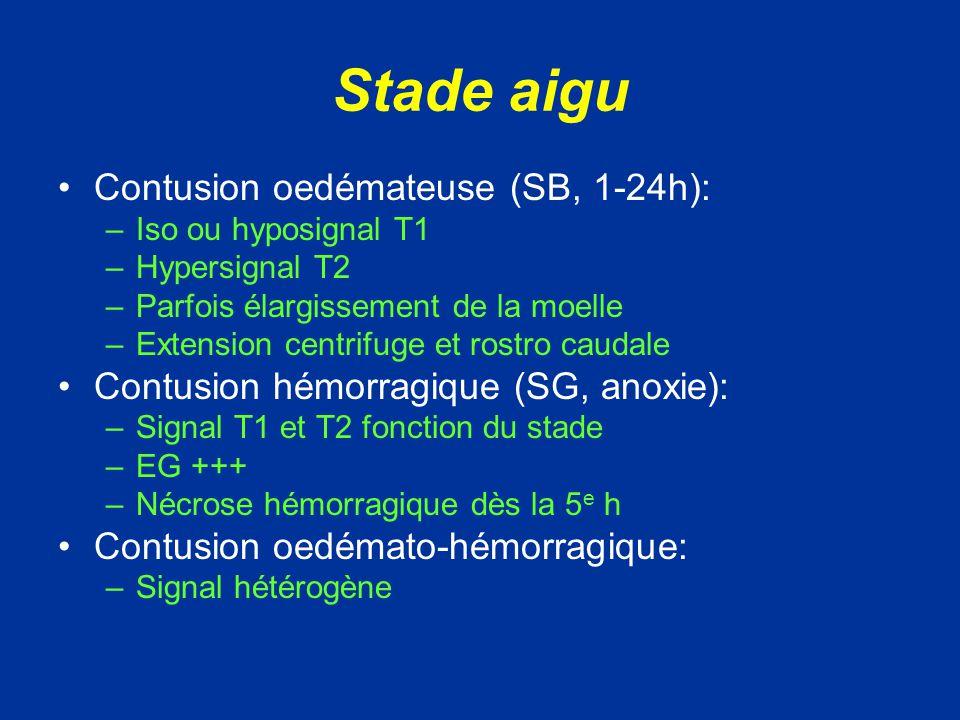 A la phase aiguë, la démonstration en IRM dune plage hémorragique franche est de mauvais pronostic; alors quune plage en hyper signal T2 focale peut régresser.