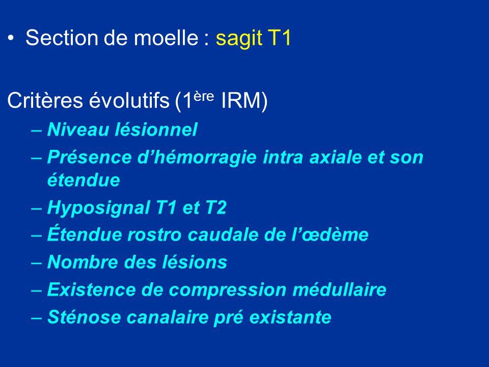 Stade sub aigu (1 à 8 sem) Anomalies de signal au dessus et au dessous du niveau lésionnel Dégénérescence Wallérienne: démyélinisation + gliose Myélomlacie: kystisation +gliose myélopathie progressive.