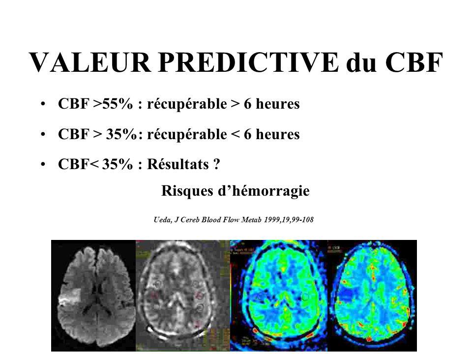 VALEUR PREDICTIVE du CBF CBF >55% : récupérable > 6 heures CBF > 35%: récupérable < 6 heures CBF< 35% : Résultats .
