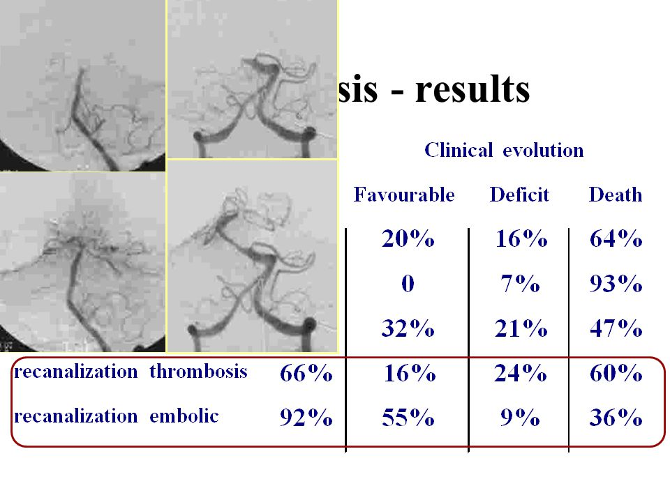 Thrombolysis - results