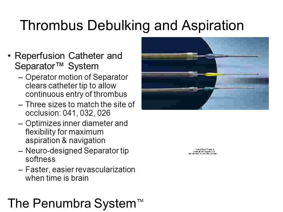Thrombus Debulking and Aspiration Reperfusion Catheter and Separator System –Operator motion of Separator clears catheter tip to allow continuous entr