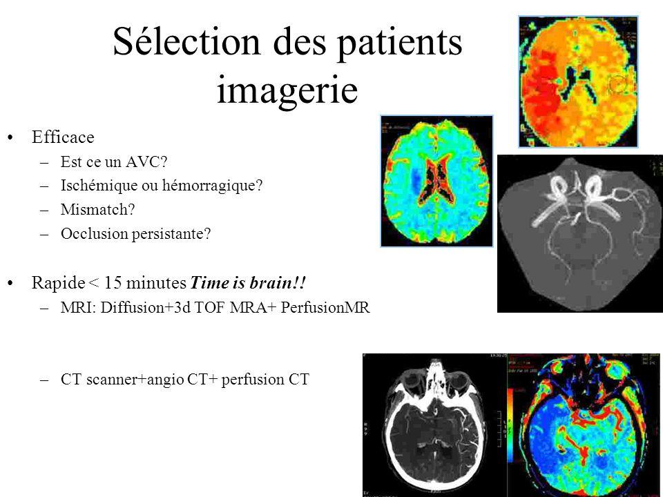 Sélection des patients imagerie Efficace –Est ce un AVC.