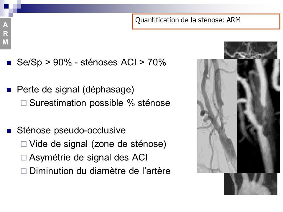 Se/Sp > 90% - sténoses ACI > 70% Perte de signal (déphasage) Surestimation possible % sténose Sténose pseudo-occlusive Vide de signal (zone de sténose