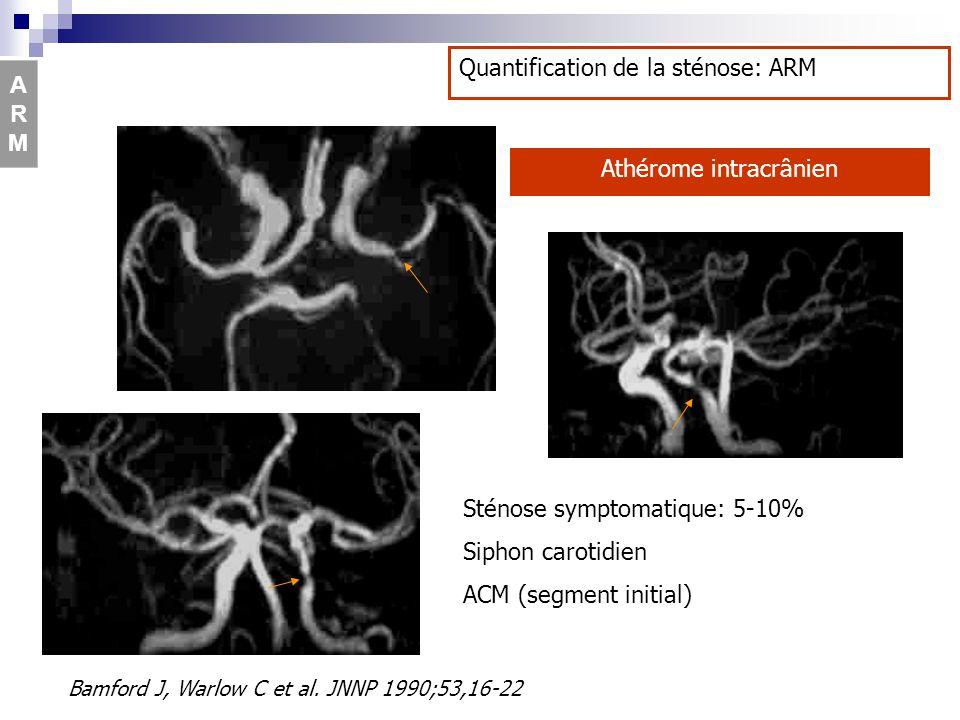 Sténose symptomatique: 5-10% Siphon carotidien ACM (segment initial) Athérome intracrânien Bamford J, Warlow C et al. JNNP 1990;53,16-22 Quantificatio
