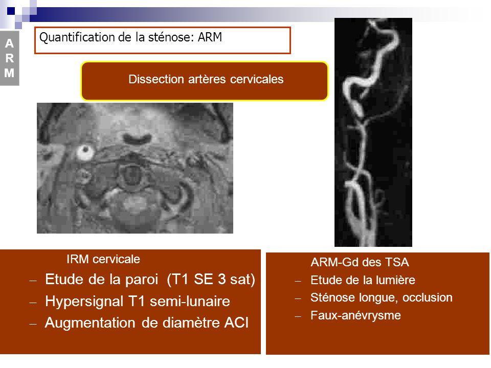 ARM-Gd des TSA – Etude de la lumière – Sténose longue, occlusion – Faux-anévrysme IRM cervicale – Etude de la paroi (T1 SE 3 sat) – Hypersignal T1 sem