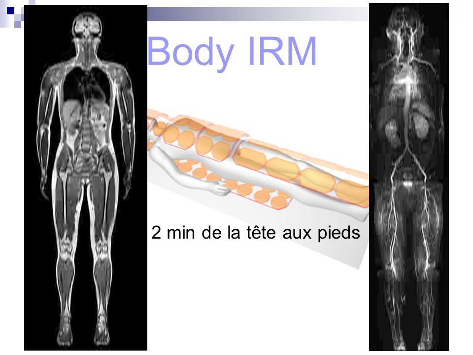Body IRM 2 min de la tête aux pieds