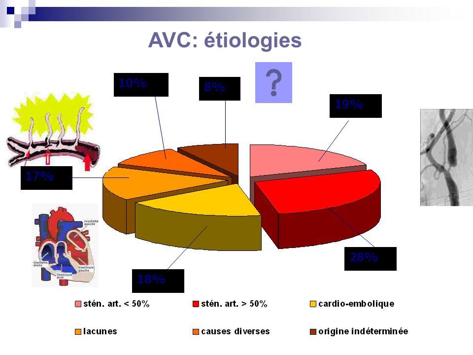 28% 19% 18% 10% 8% 17% AVC: étiologies