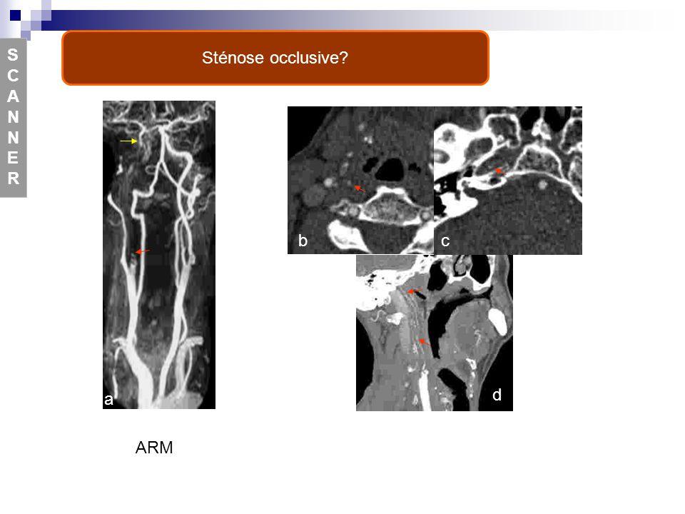 a bc d e f Sténose occlusive? SCANNERSCANNER ARM