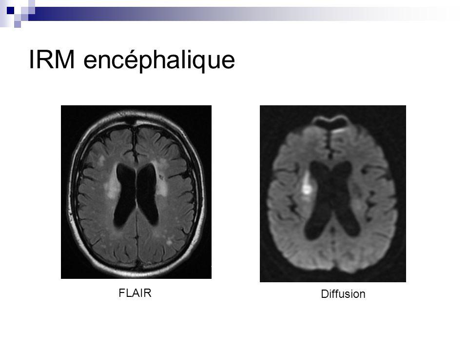 IRM encéphalique FLAIR Diffusion