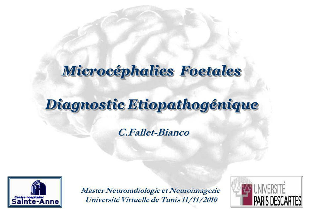 Microcéphalies Foetales Diagnostic Etiopathogénique Microcéphalies Foetales Diagnostic Etiopathogénique C.Fallet-Bianco Master Neuroradiologie et Neuroimagerie Université Virtuelle de Tunis 11/11/2010