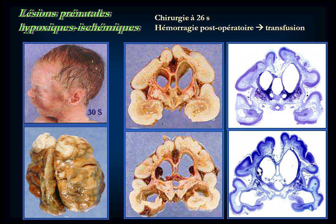 Lésions prénatales hypoxiques-ischémiques hypoxiques-ischémiques 30 S Chirurgie à 26 s Hémorragie post-opératoire transfusion