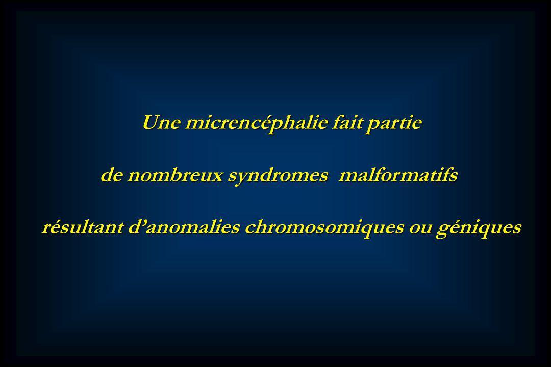 Une micrencéphalie fait partie Une micrencéphalie fait partie de nombreux syndromes malformatifs résultant danomalies chromosomiques ou géniques résultant danomalies chromosomiques ou géniques