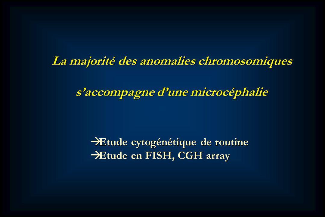 La majorité des anomalies chromosomiques saccompagne dune microcéphalie Etude cytogénétique de routine Etude cytogénétique de routine Etude en FISH, CGH array Etude en FISH, CGH array
