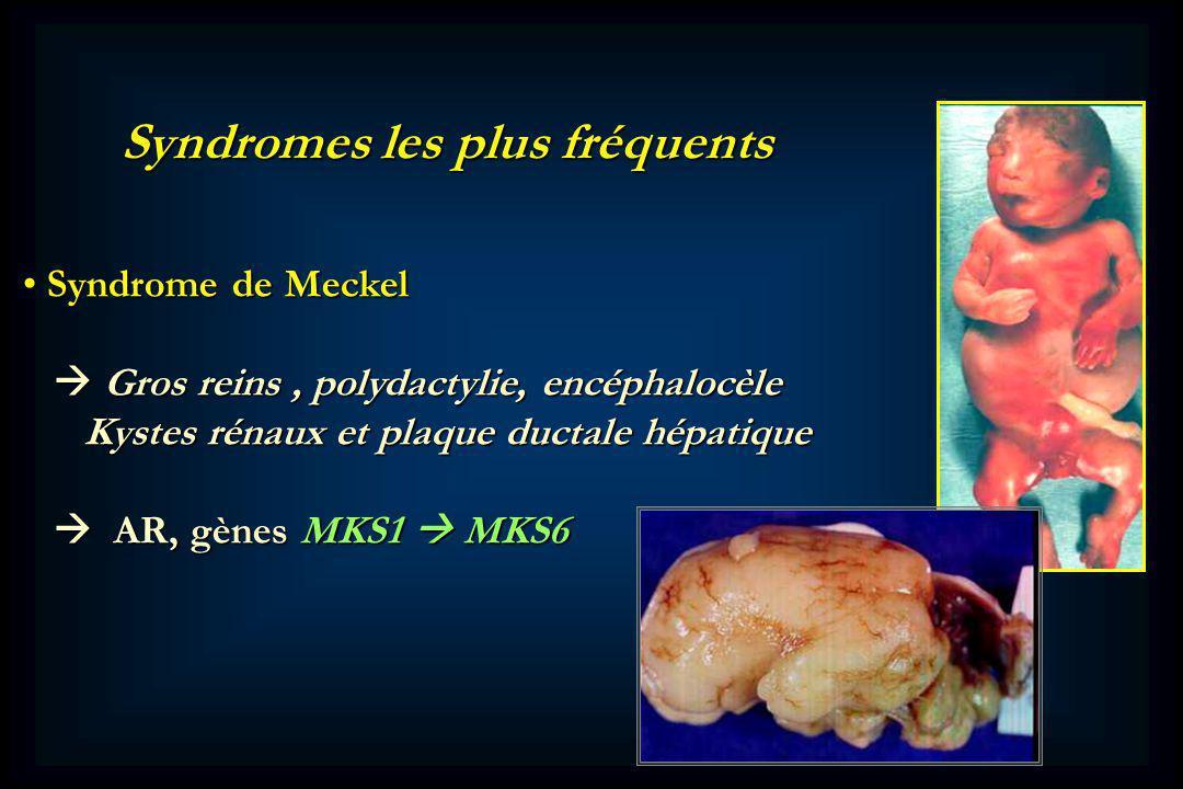 Syndromes les plus fréquents Syndrome de Meckel Syndrome de Meckel Gros reins, polydactylie, encéphalocèle Gros reins, polydactylie, encéphalocèle Kystes rénaux et plaque ductale hépatique Kystes rénaux et plaque ductale hépatique AR, gènes MKS1 MKS6 AR, gènes MKS1 MKS6