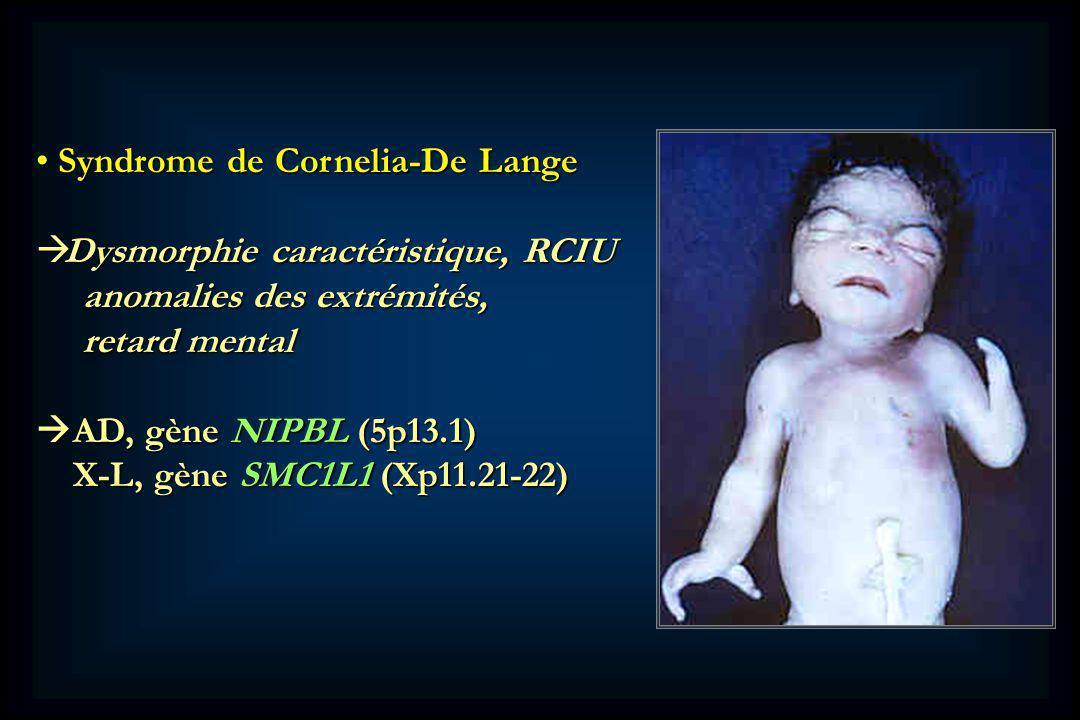 Syndrome de Cornelia-De Lange Syndrome de Cornelia-De Lange Dysmorphie caractéristique, RCIU Dysmorphie caractéristique, RCIU anomalies des extrémités, anomalies des extrémités, retard mental retard mental AD, gène NIPBL (5p13.1) AD, gène NIPBL (5p13.1) X-L, gène SMC1L1 (Xp11.21-22) X-L, gène SMC1L1 (Xp11.21-22)