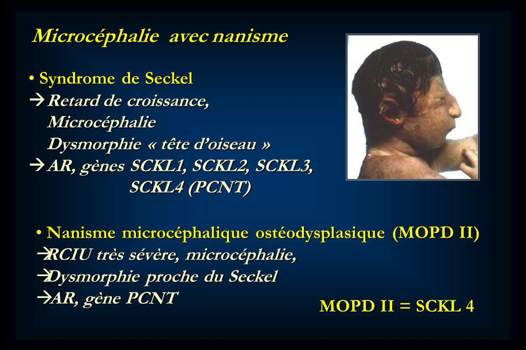 Microcéphalie avec nanisme Syndrome de Seckel Syndrome de Seckel Retard de croissance, Retard de croissance, Microcéphalie Microcéphalie Dysmorphie « tête doiseau » Dysmorphie « tête doiseau » AR, gènes SCKL1, SCKL2, SCKL3, AR, gènes SCKL1, SCKL2, SCKL3, SCKL4 (PCNT) SCKL4 (PCNT) Nanisme microcéphalique ostéodysplasique (MOPD II) Nanisme microcéphalique ostéodysplasique (MOPD II) RCIU très sévère, microcéphalie, RCIU très sévère, microcéphalie, Dysmorphie proche du Seckel Dysmorphie proche du Seckel AR, gène PCNT AR, gène PCNT MOPD II = SCKL 4