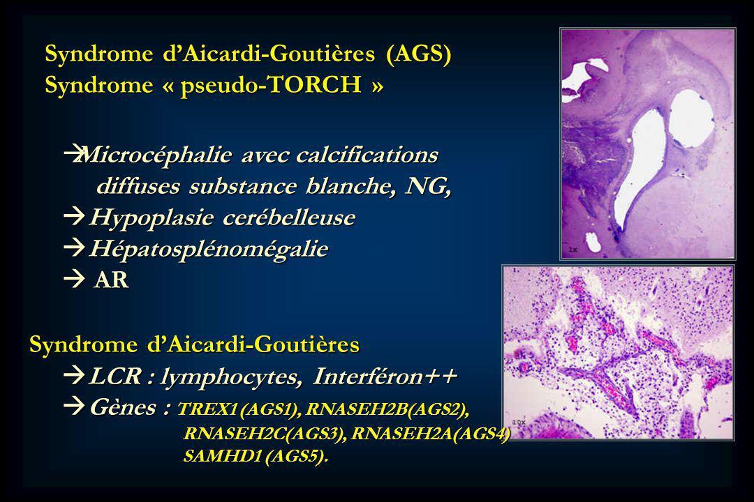 Syndrome dAicardi-Goutières (AGS) Syndrome « pseudo-TORCH » Microcéphalie avec calcifications Microcéphalie avec calcifications diffuses substance blanche, NG, diffuses substance blanche, NG, Hypoplasie cerébelleuse Hypoplasie cerébelleuse Hépatosplénomégalie Hépatosplénomégalie AR AR Syndrome dAicardi-Goutières LCR : lymphocytes, Interféron++ LCR : lymphocytes, Interféron++ Gènes : TREX1 (AGS1), RNASEH2B(AGS2), Gènes : TREX1 (AGS1), RNASEH2B(AGS2), RNASEH2C(AGS3), RNASEH2A(AGS4) RNASEH2C(AGS3), RNASEH2A(AGS4) SAMHD1 (AGS5).