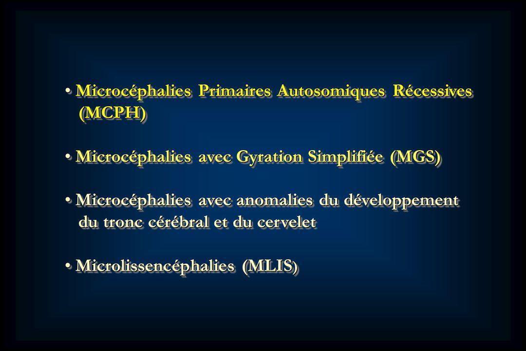 Microcéphalies Primaires Autosomiques Récessives Microcéphalies Primaires Autosomiques Récessives (MCPH) (MCPH) Microcéphalies avec Gyration Simplifiée (MGS) Microcéphalies avec Gyration Simplifiée (MGS) Microcéphalies avec anomalies du développement Microcéphalies avec anomalies du développement du tronc cérébral et du cervelet du tronc cérébral et du cervelet Microlissencéphalies (MLIS ) Microlissencéphalies (MLIS ) Microcéphalies Primaires Autosomiques Récessives Microcéphalies Primaires Autosomiques Récessives (MCPH) (MCPH) Microcéphalies avec Gyration Simplifiée (MGS) Microcéphalies avec Gyration Simplifiée (MGS) Microcéphalies avec anomalies du développement Microcéphalies avec anomalies du développement du tronc cérébral et du cervelet du tronc cérébral et du cervelet Microlissencéphalies (MLIS ) Microlissencéphalies (MLIS )