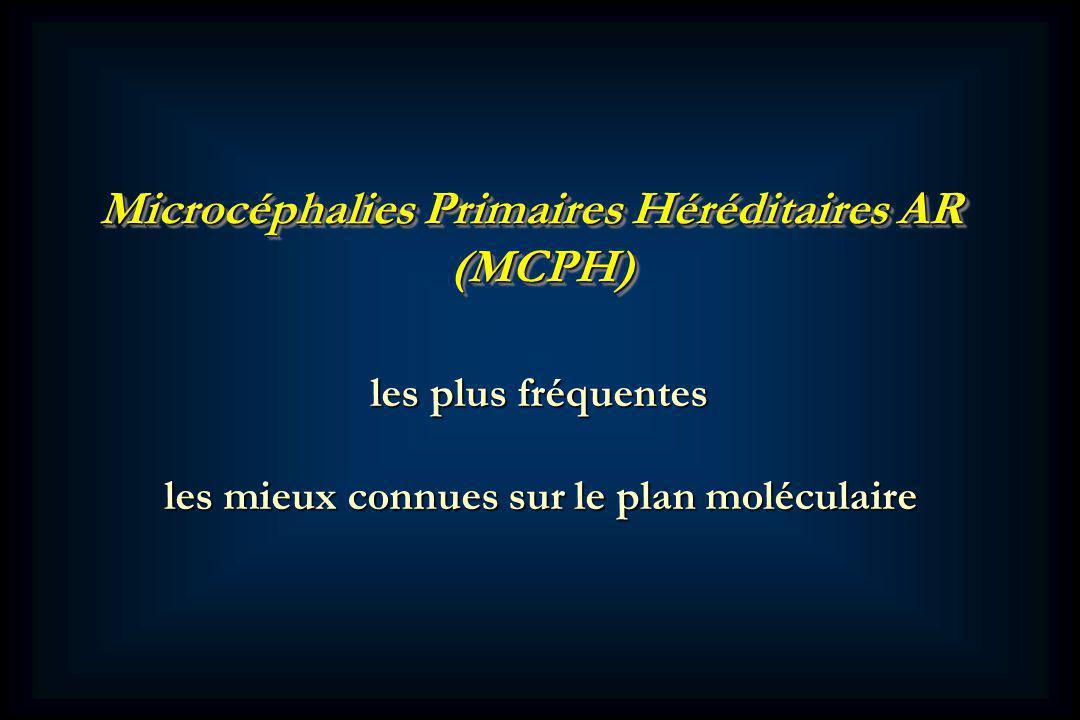 Microcéphalies Primaires Héréditaires AR (MCPH) (MCPH) les plus fréquentes les plus fréquentes les mieux connues sur le plan moléculaire les mieux connues sur le plan moléculaire