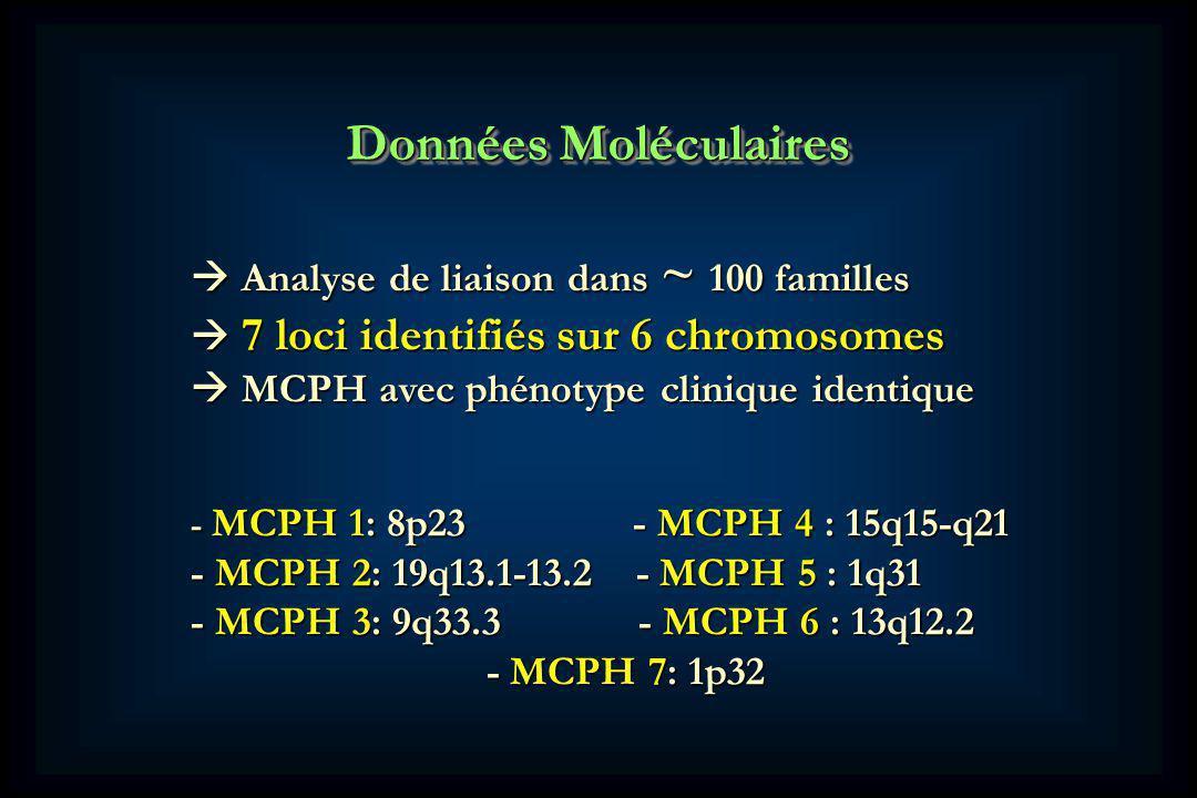 Données Moléculaires Analyse de liaison dans ~ 100 familles Analyse de liaison dans ~ 100 familles 7 loci identifiés sur 6 chromosomes 7 loci identifiés sur 6 chromosomes MCPH avec phénotype clinique identique MCPH avec phénotype clinique identique - MCPH 1: 8p23 - MCPH 4 : 15q15-q21 - MCPH 2: 19q13.1-13.2 - MCPH 5 : 1q31 - MCPH 3: 9q33.3 - MCPH 6 : 13q12.2 - MCPH 7: 1p32 - MCPH 7: 1p32