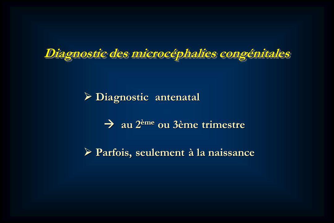 Diagnostic des microcéphalies congénitales Diagnostic antenatal Diagnostic antenatal au 2 ème ou 3ème trimestre au 2 ème ou 3ème trimestre Parfois, seulement à la naissance Parfois, seulement à la naissance