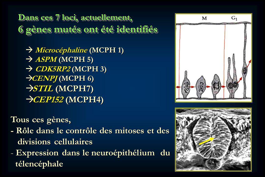 Dans ces 7 loci, actuellement, 6 gènes mutés ont été identifiés Dans ces 7 loci, actuellement, 6 gènes mutés ont été identifiés Microcéphaline (MCPH 1) Microcéphaline (MCPH 1) ASPM (MCPH 5) ASPM (MCPH 5) CDK5RP2 (MCPH 3) CDK5RP2 (MCPH 3) CENPJ (MCPH 6) CENPJ (MCPH 6) STIL (MCPH7) STIL (MCPH7) CEP152 (MCPH4) CEP152 (MCPH4) Tous ces gènes, - Rôle dans le contrôle des mitoses et des divisions cellulaires divisions cellulaires - Expression dans le neuroépithélium du télencéphale télencéphale