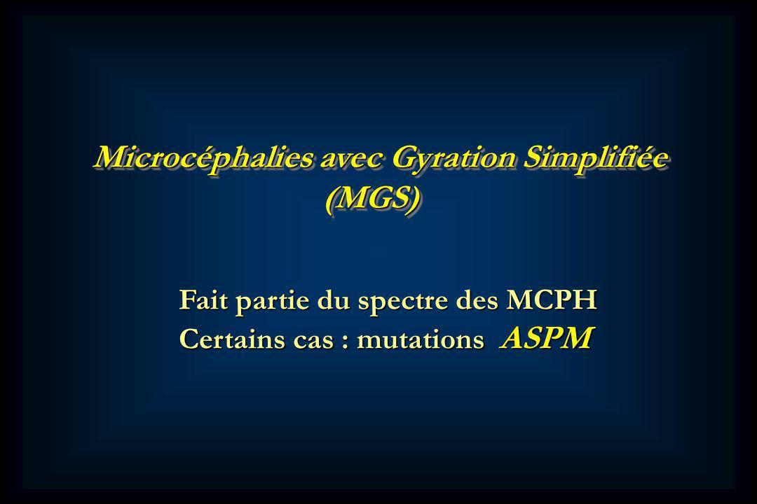 Microcéphalies avec Gyration Simplifiée (MGS) (MGS) Fait partie du spectre des MCPH Certains cas : mutations ASPM