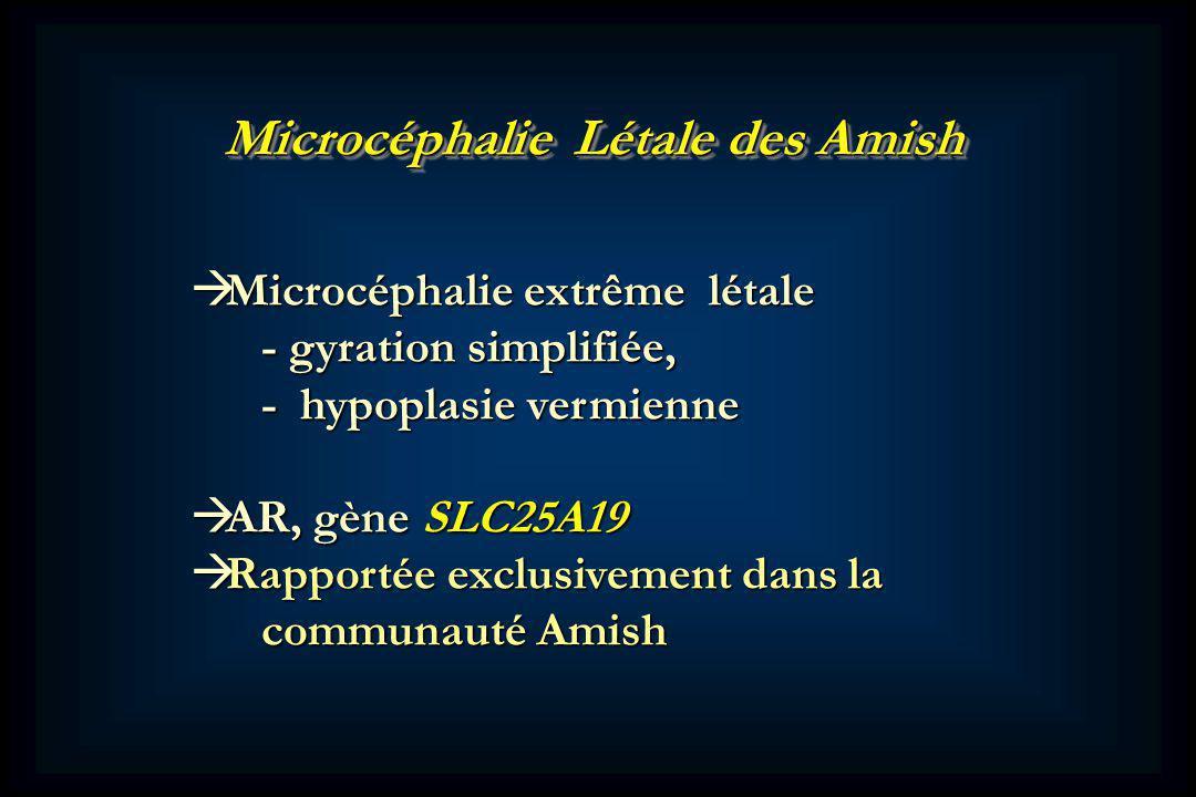Microcéphalie Létale des Amish Microcéphalie extrême létale Microcéphalie extrême létale - gyration simplifiée, - gyration simplifiée, - hypoplasie vermienne - hypoplasie vermienne AR, gène SLC25A19 AR, gène SLC25A19 Rapportée exclusivement dans la Rapportée exclusivement dans la communauté Amish communauté Amish