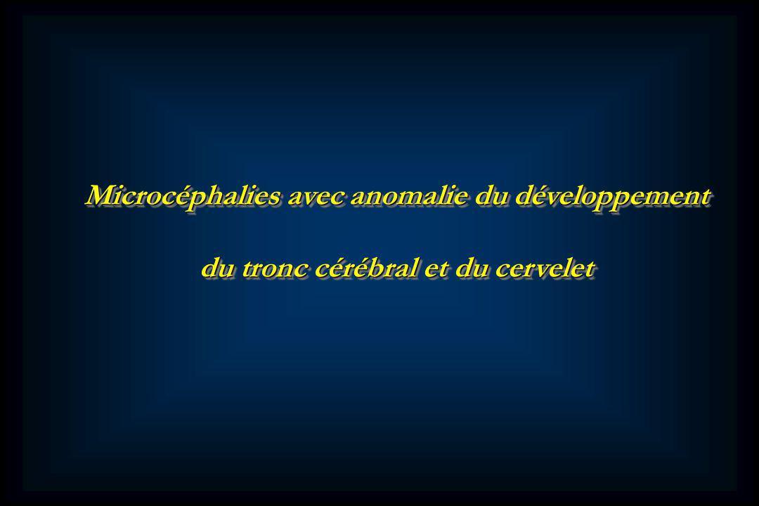 Microcéphalies avec anomalie du développement du tronc cérébral et du cervelet Microcéphalies avec anomalie du développement du tronc cérébral et du cervelet